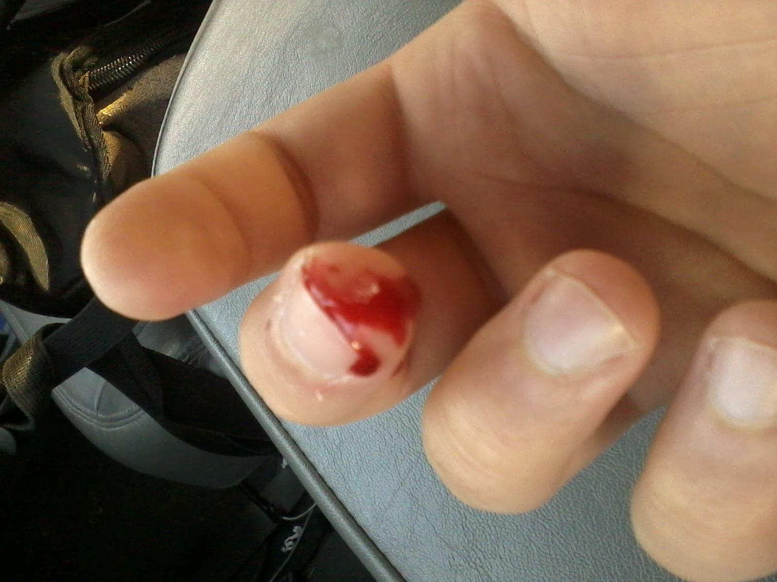 Cut tip of thumb off